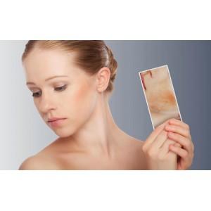 Ατοπικό Δέρμα