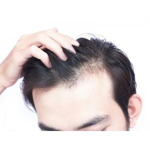 Δέρμα - Μαλλιά - Νύχια - Τριχόπτωση